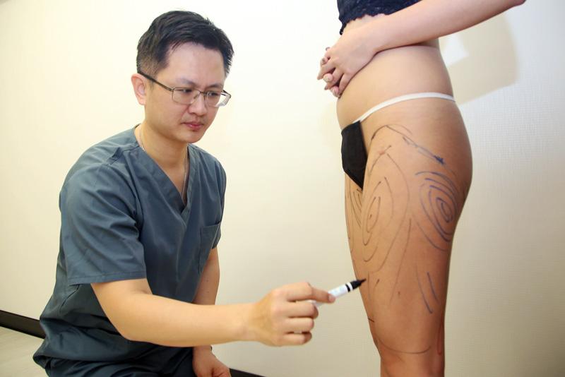 自體脂肪移植手術1