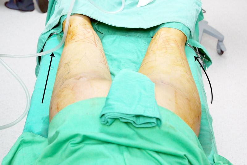 自體脂肪移植手術4