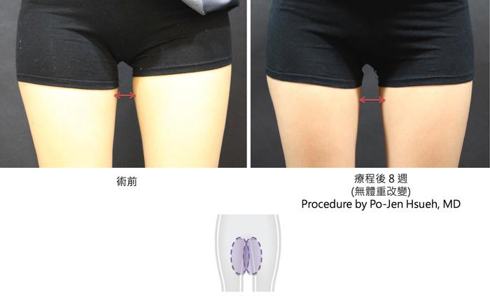 酷塑減脂大腿