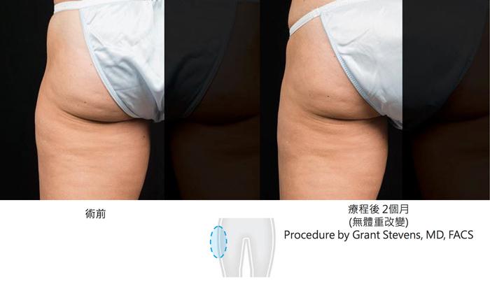 酷塑減脂臀部