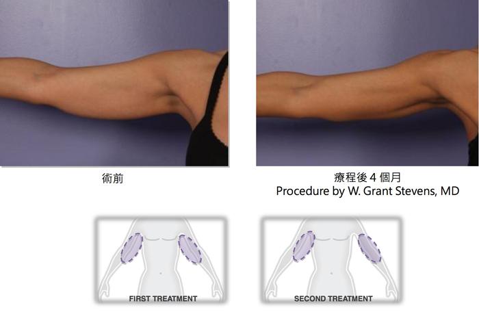 酷塑減脂手臂