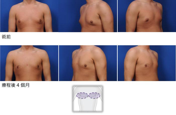 酷塑減脂胸部