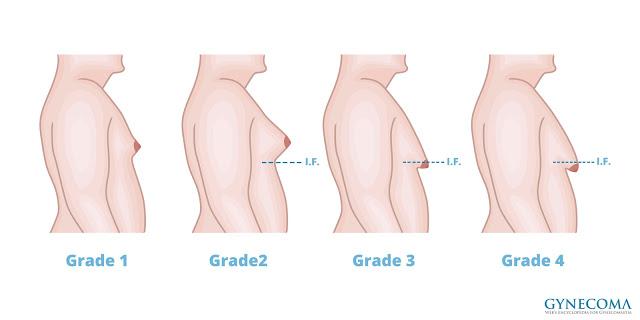 男性女乳症症狀