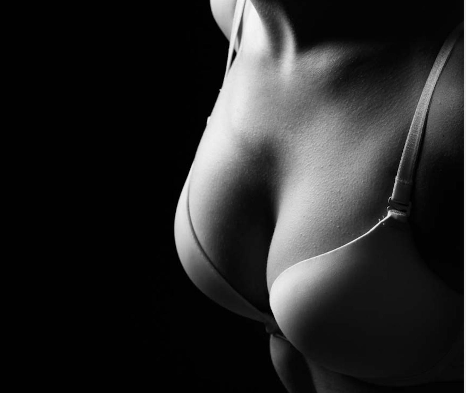 隆乳併發症以及處理-莢膜攣縮篇