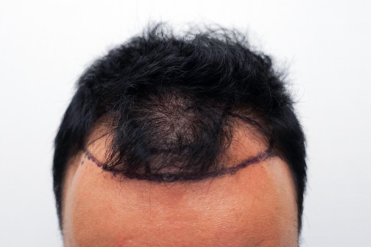 「新增」植髮術前