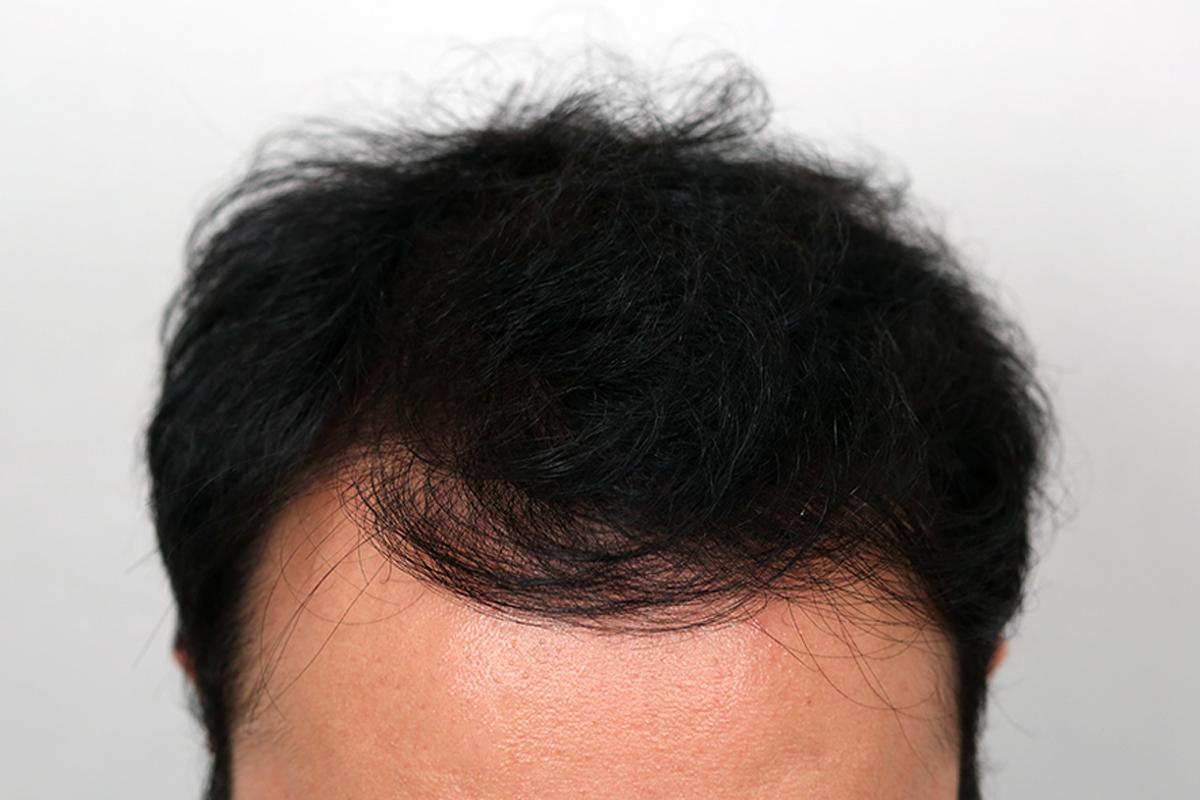 「新增」植髮術後