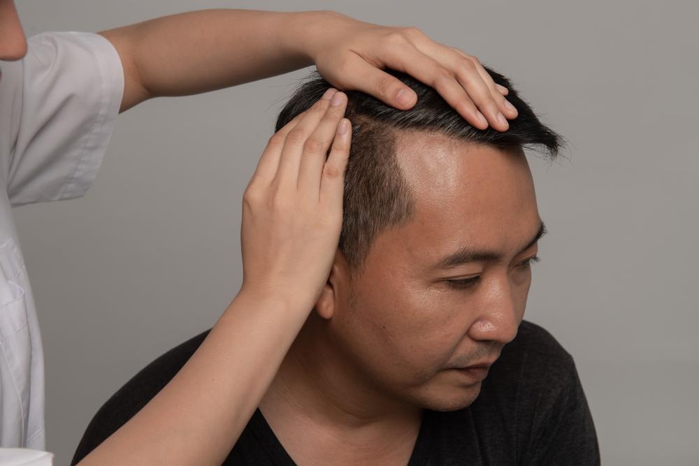 台中植髮推薦哪種手術?FUT、FUE、ARTAS三種手術效果比較一次告訴你
