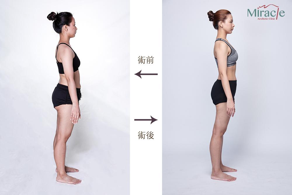 威塑脂雕術前術後,可以看到臀部與腿部比例的改變,讓腿更修長