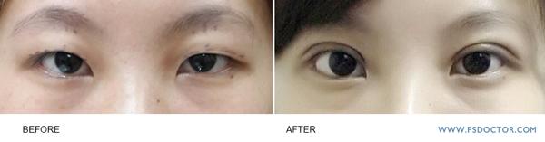 訂書針雙眼皮術前術後效果