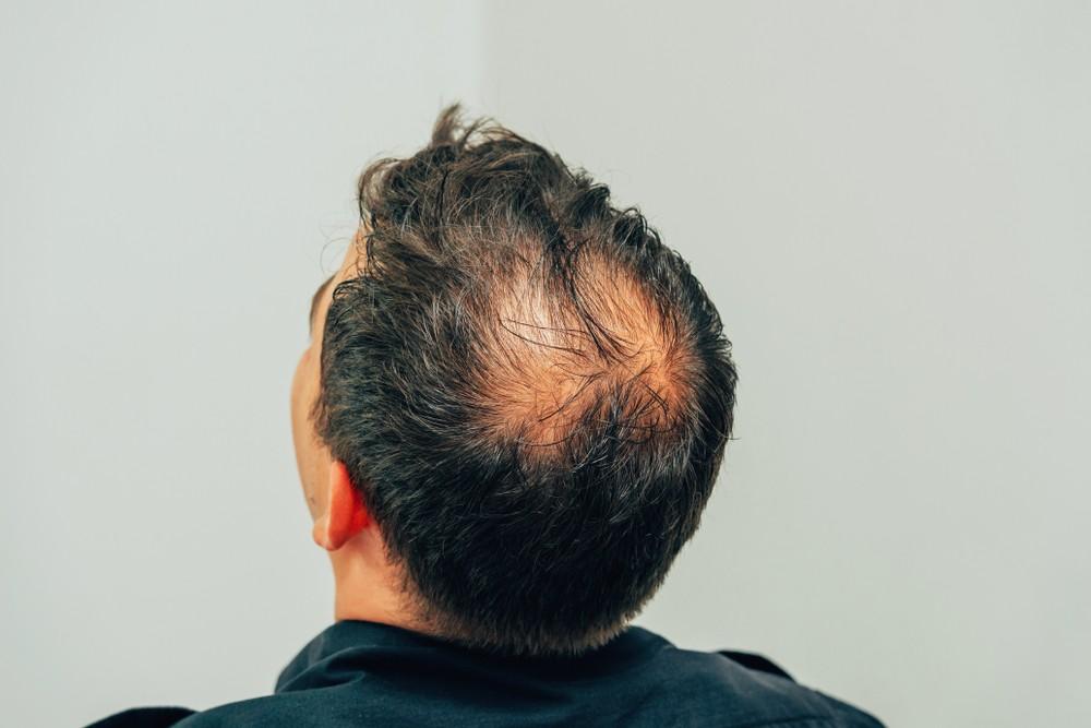 地中海禿頭怎麼辦?原因、前兆及治療方法一次告訴你