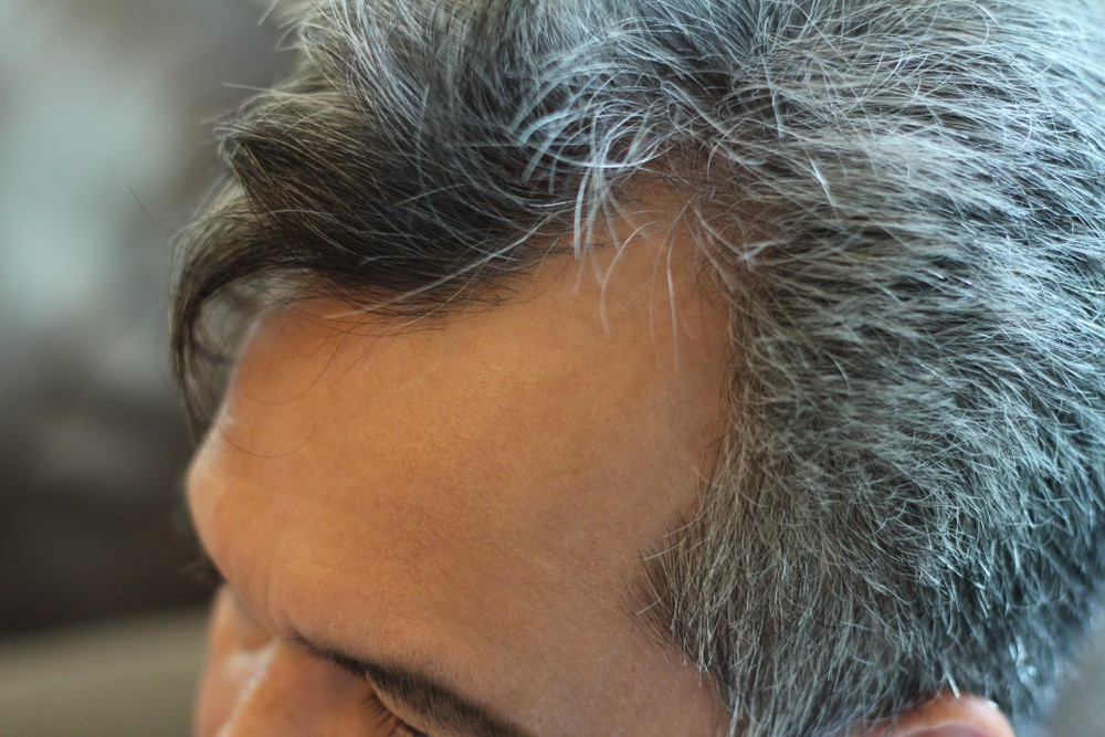 M型禿怎麼辦?掌握3關鍵拯救不斷退後的髮線