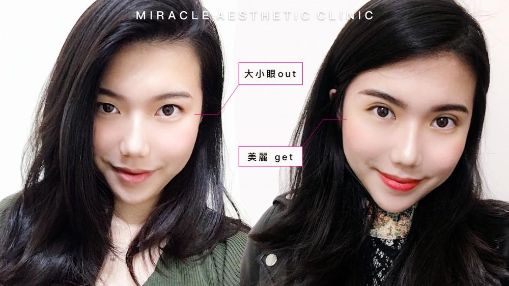 微創雙眼皮:除了恢復期,更值得擁有的柔美眼神