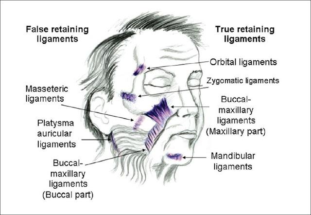 玻尿酸True Lift真性韌帶拉皮,臉型下垂拉提免動刀!