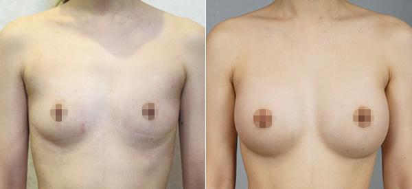 水滴型隆乳案例術後對比圖