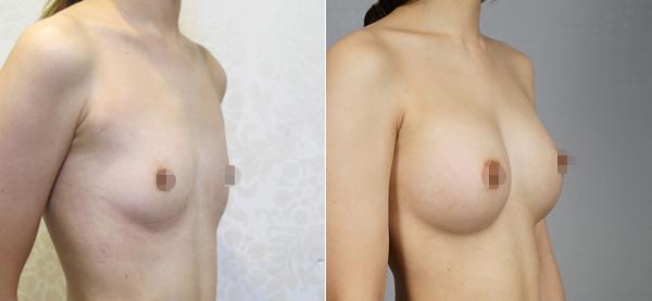 水滴型隆乳案例術後對比圖2