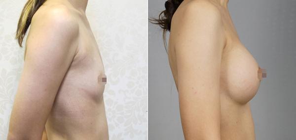 水滴型隆乳案例術後對比圖3