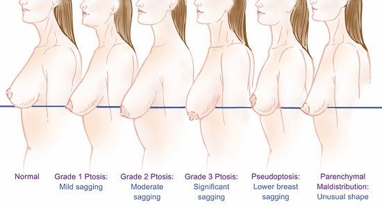 產後胸部下垂鬆弛好想哭!我該如何改善奶頭乳頭下垂?