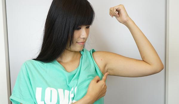 喬菲的超音波手臂抽脂心得|蝴蝶袖抽脂還我手臂緊緻線條