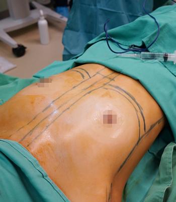 水滴胸手術過程前-對比照