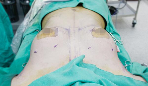 水滴型隆乳, 外在形狀運用定位點來確認