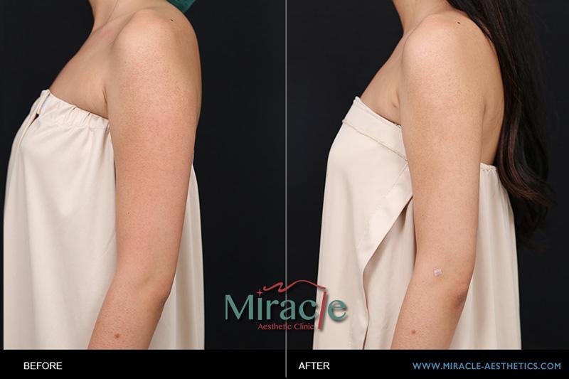 自體脂肪轉移豐胸隆乳:女孩大腿抽脂轉移勇敢蛻變