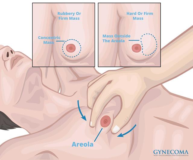 男性女乳症確診