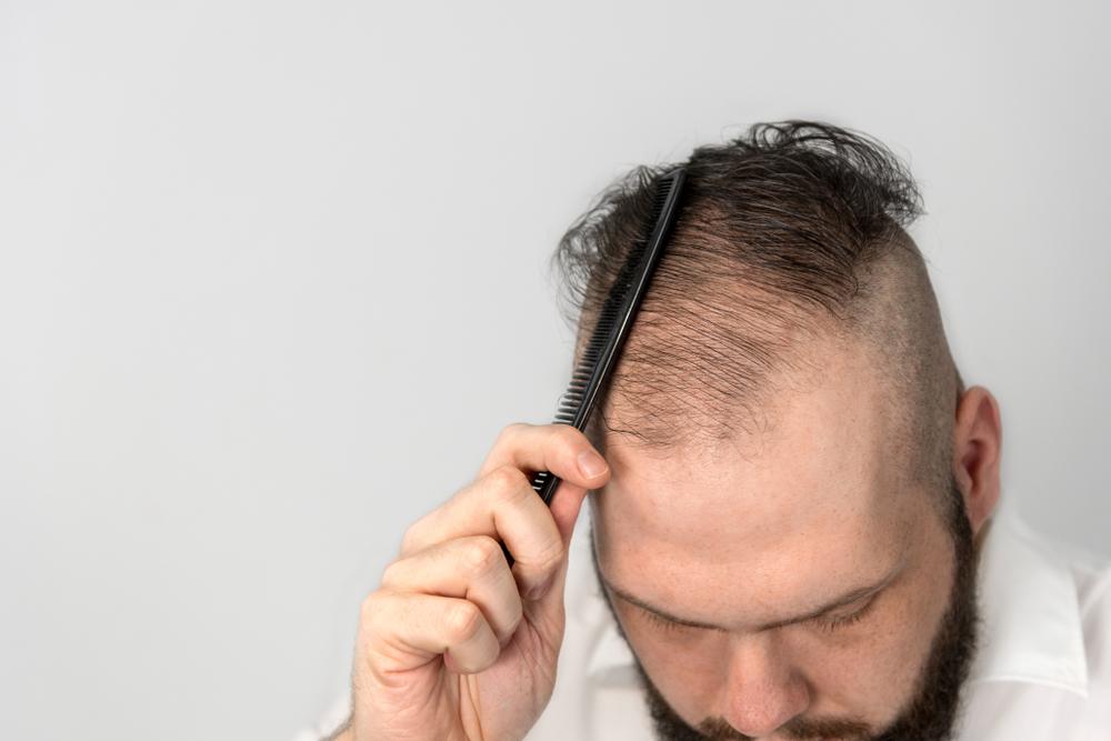 M型禿怎麼辦?掌握3關鍵拯救M字禿頭