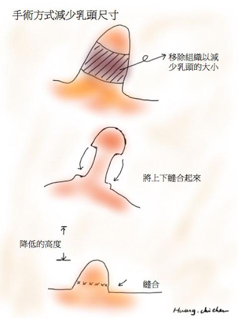 手術減少乳頭尺寸