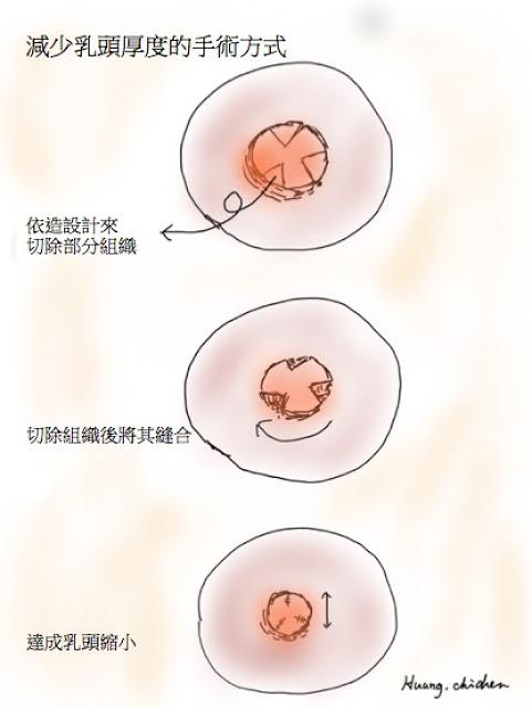 減少乳頭厚度的手術方式