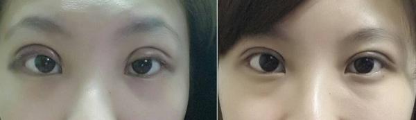 雙眼皮手術 雙眼皮心得