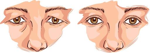 雙眼皮手術後遺症比較