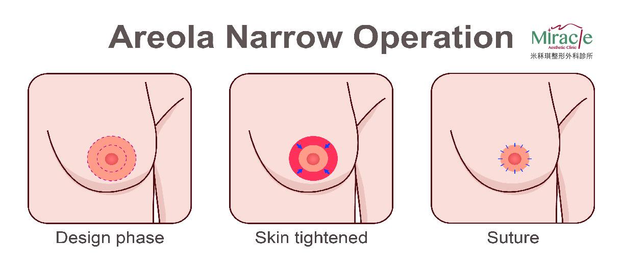 乳暈縮小示意圖
