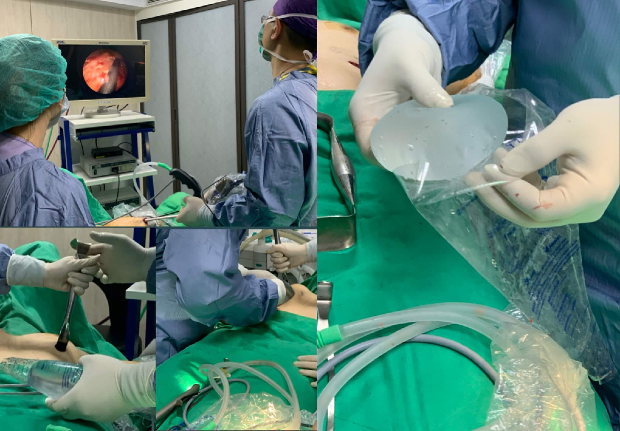 微創隆乳流程