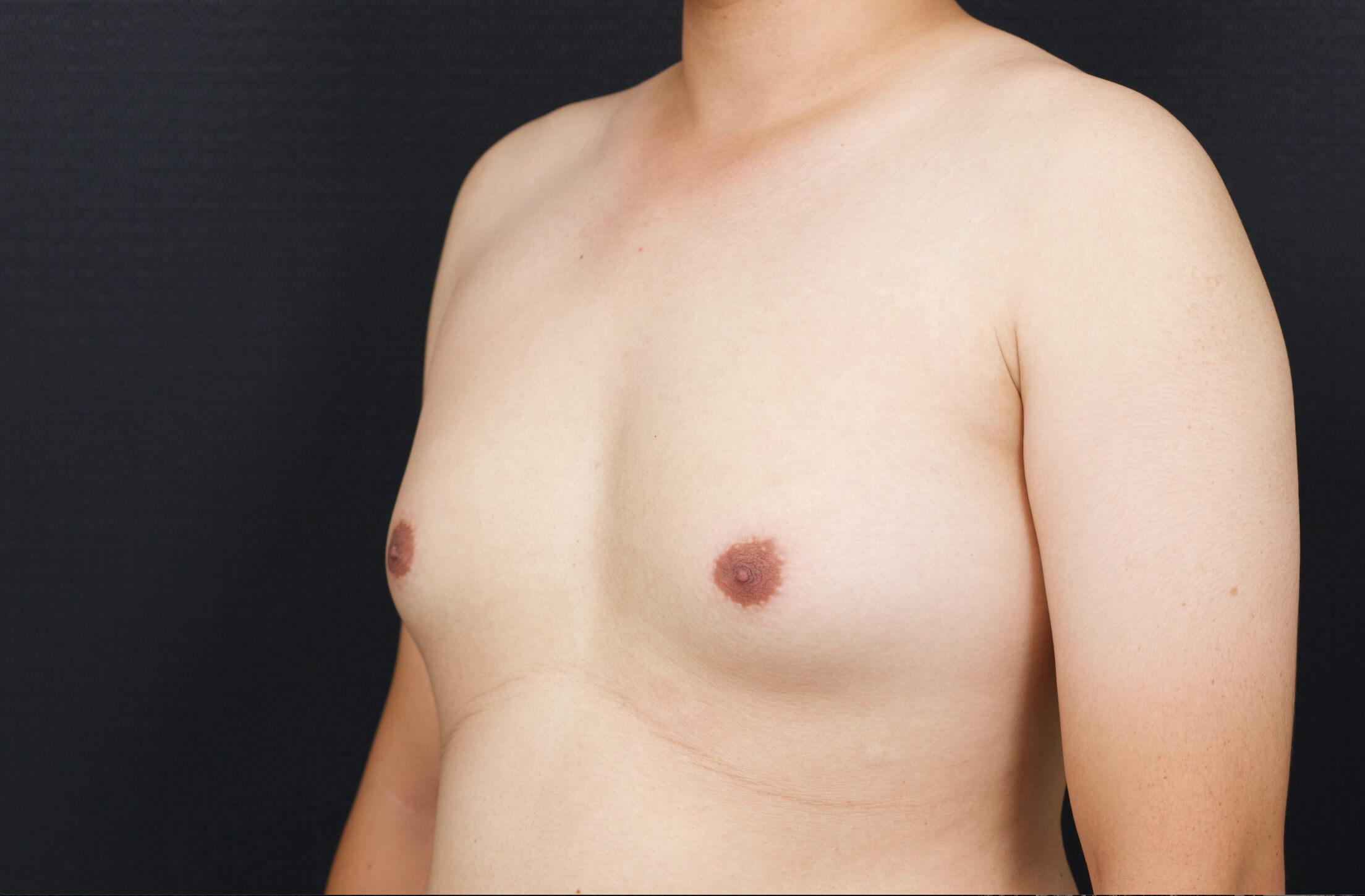男性女乳2