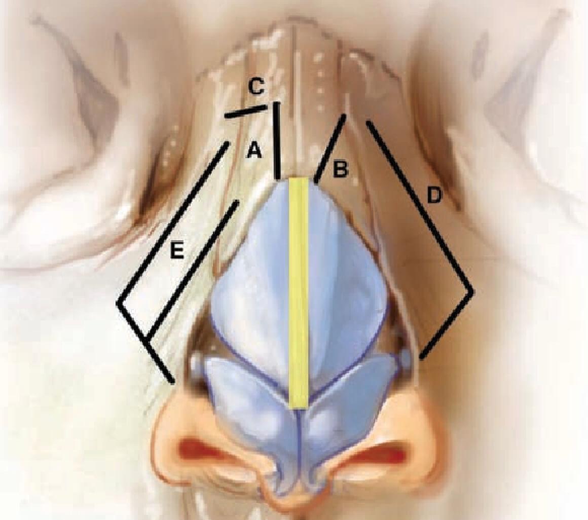 鼻整形- 截骨術