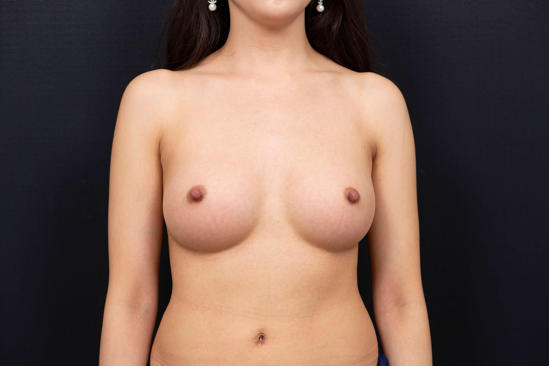 水滴形隆乳術後
