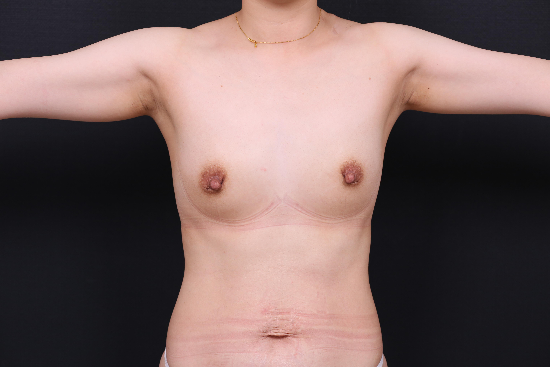 20200428魔滴腋下隆乳+縮乳頭術前照6