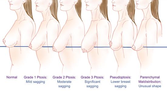 乳房下垂的分級