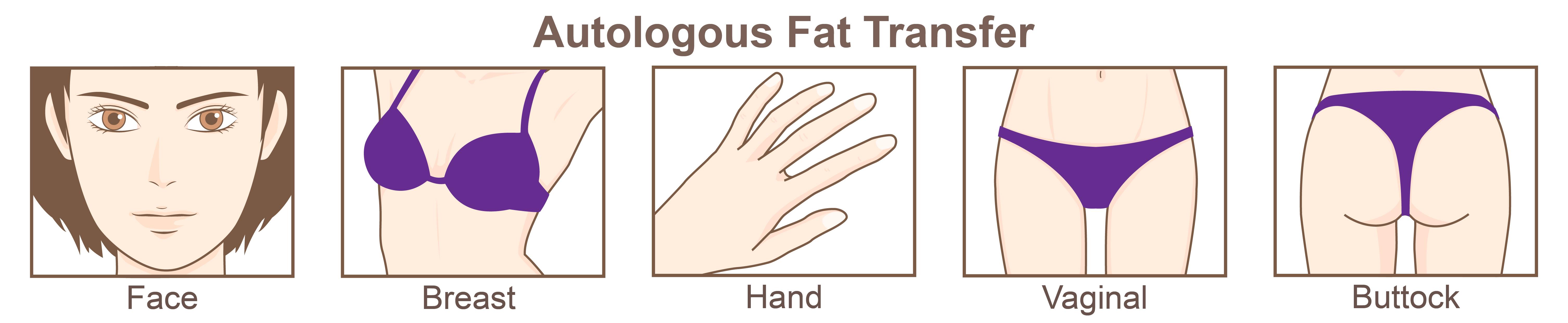 自體脂肪填充可以改善面部凹陷、胸部產後萎縮、臀部扁平等問題