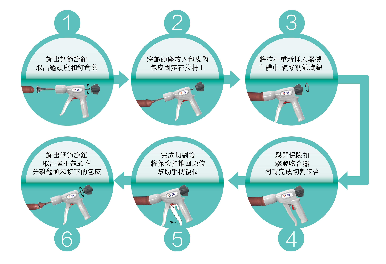 包皮槍手術操作流程如下
