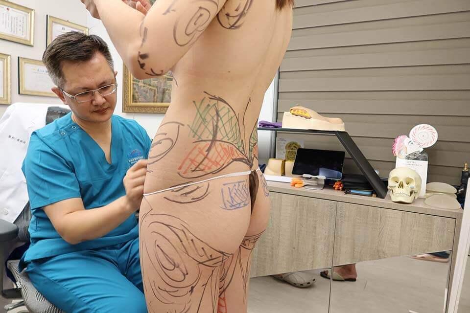 vaser威塑抽脂心得分享|vaser威塑脂雕讓我再現性感腰身!
