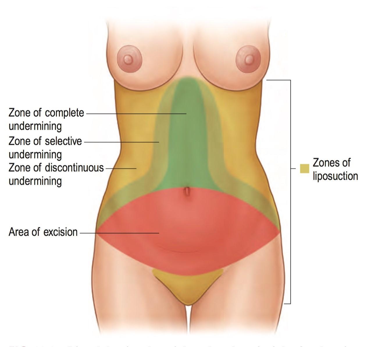 產後腹部鬆弛拉皮圖