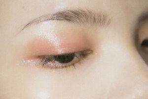 眼皮抽脂多少錢?眼皮抽脂手術可以治療泡泡眼嗎?
